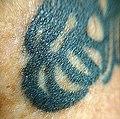 Skin - Flickr - Stiller Beobachter (1).jpg