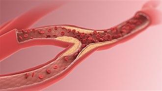 Arteriole - Decreased diameter of Arteriole.