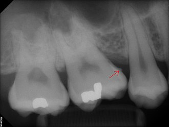 Calculus (dental) - Calculus deposit on x-ray image