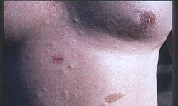 definition of neurofibromatosis