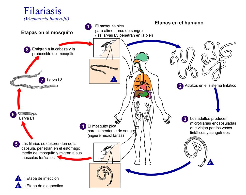 Filariasis - eAnswers