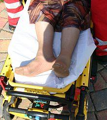 gebroken heup operatie ouderen
