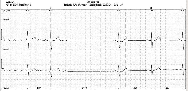 File:Holter AtrialFlutter.jpg