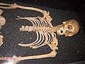Human skeleton remains.jpg