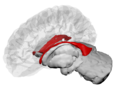 Lateral Ventricles - DK ATLAS.png