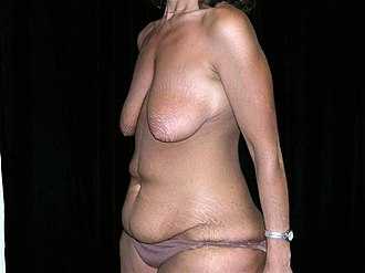 Excess skin - A 35-year-old woman with excess abdominal skin and sagging breasts due to weight loss.
