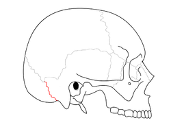 Occipitomastoid suture.png