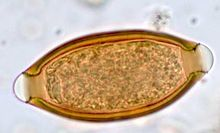Parasite140080-fig3 Gastrointestinal parasites in seven primates of the Taï National Park - Helminths Figure 3i.jpg