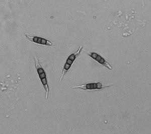 Medicinal fungi - Image: Pestalotia opsis spores for wiki