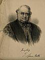 Sir Thomas Spencer Wells. Lithograph after R. Lehmann. Wellcome V0006212.jpg