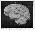 Site of lesion in various forms of aphasia. Wellcome L0023665.jpg