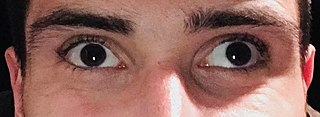 Strabismus Eyes not aligning when looking at something