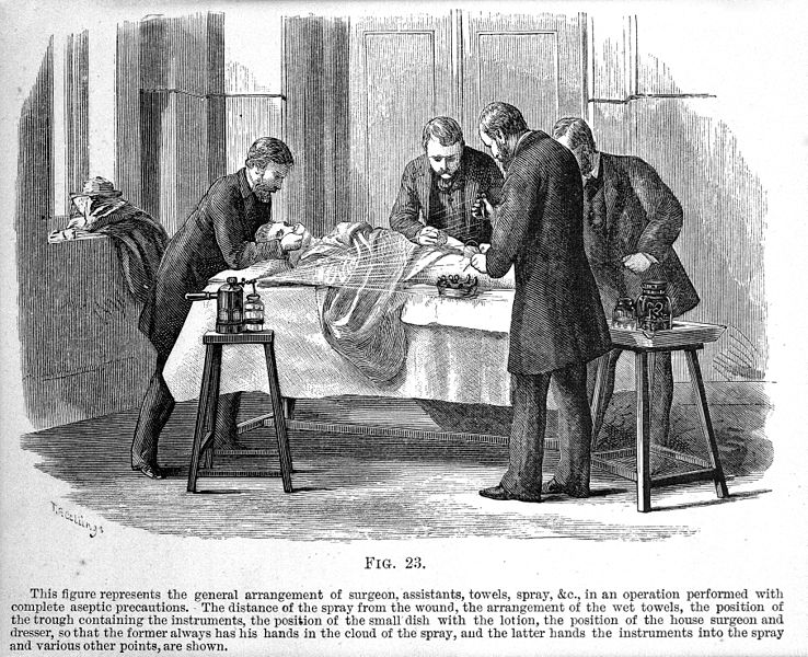 File:Use of the Lister carbolic spray, Antiseptic surgery, 1882. Wellcome M0003436.jpg