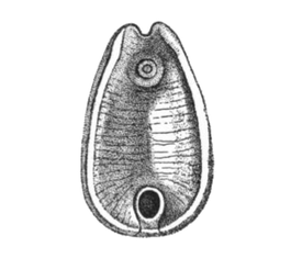 паразиты на вскрытии человека