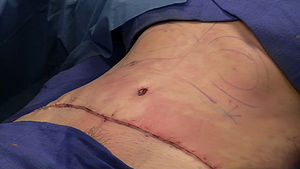 "Abdominoplasty - The completely sutured area where nearly 100 square centimeters of skin was removed during a combination abdominoplasty and liposuction procedure (also known as a ""lipo-tuck""). Note the ""neo""-umbilicus (belly button) that was reattached to a newly created hole."