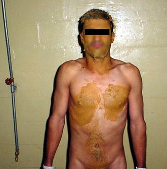 Abu Ghraib torture and prisoner abuse - An Iraqi detainee with human excreta smeared on face and neck, chest and stomach