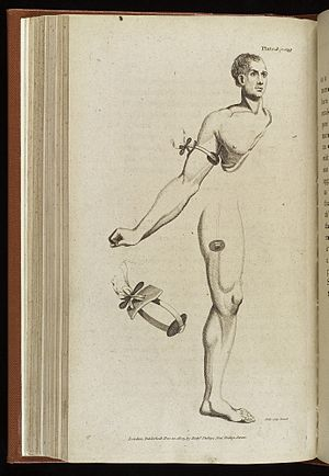 Application of tourniquet to arm and thigh, c. 1806 Wellcome L0038432.jpg