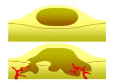 Loss of breast tissue reasons