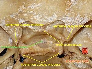 Sella turcica - Image: Base of skull 8