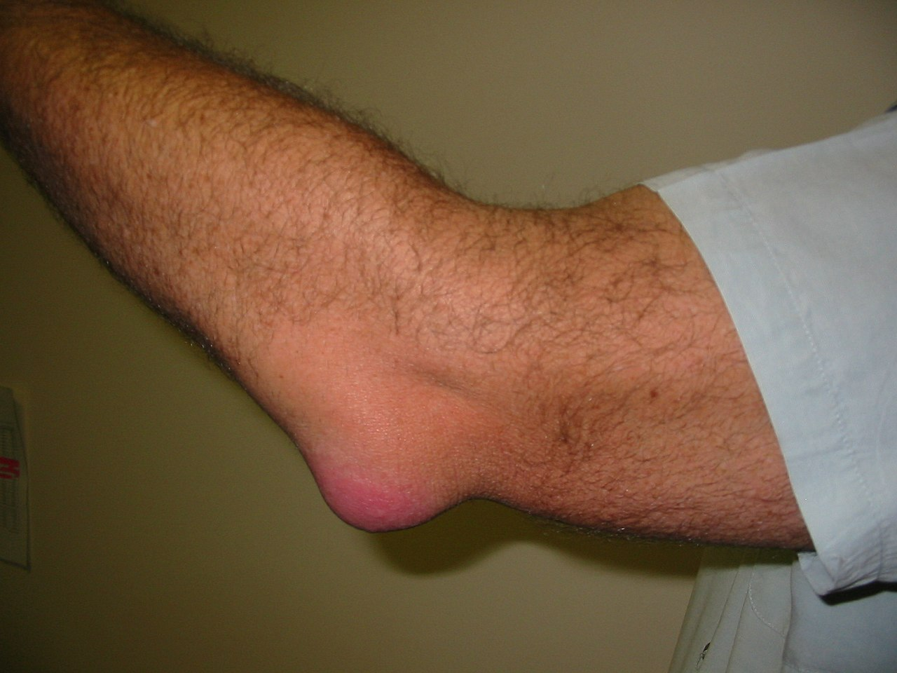File:Bursitis Elbow WC.JPG - Wikimedia Commons