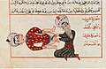 Charaf-ed-Din. Operation for castration (1466).jpg