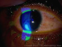 bacteria ulceration of the cornea