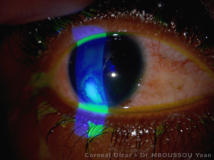 Corneal Ulcer.png