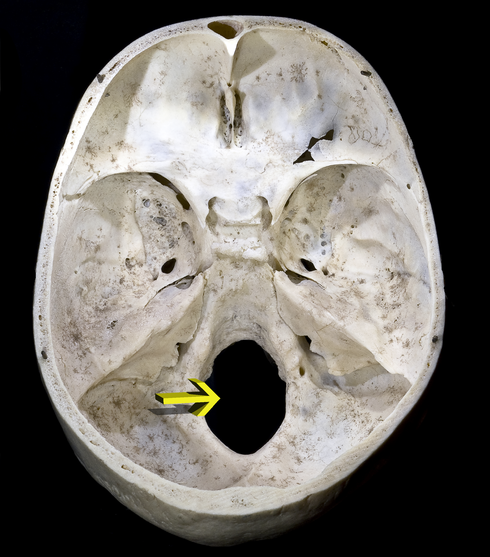 Foramen magno - Wikiwand