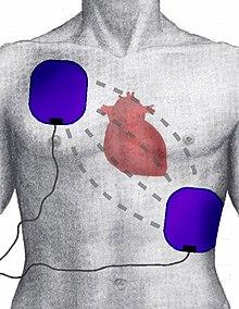 Defibrillazione - Wikipedia