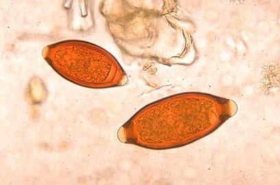 Яйца нематод под оптическим микроскопом (меньшее — Trichuris vulpis, большее — власоглав)