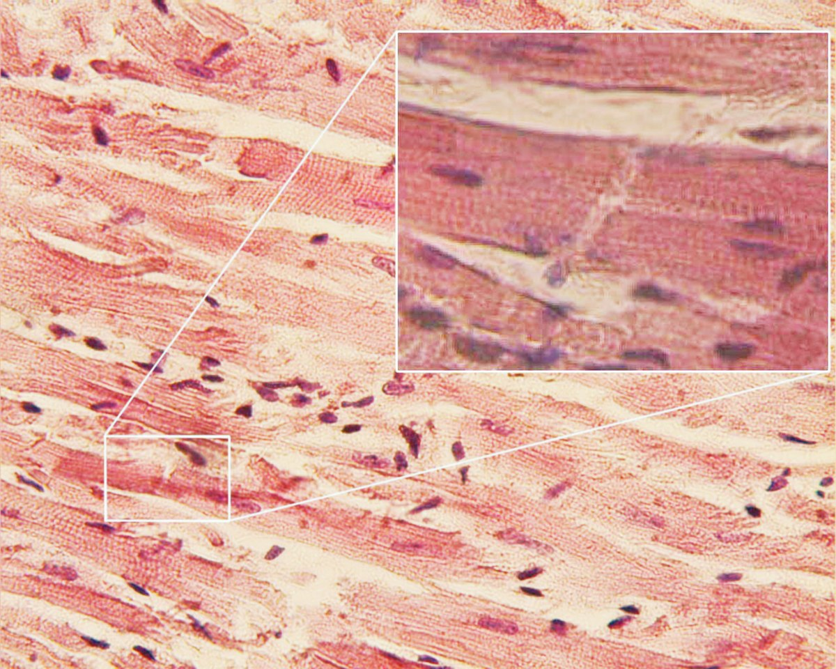 Cardiac Muscle Wikipedia