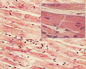 Cardiac muscle - Image: Glanzstreifen