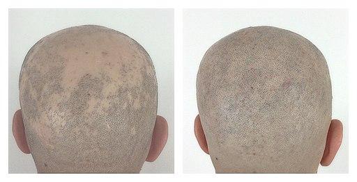 Haarausfall Alopecia Areata symptoms