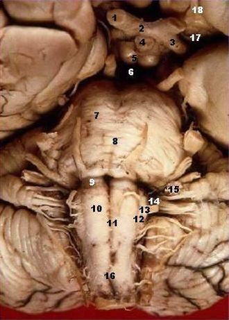 Basilar sulcus - Image: Human brainstem anterior view description