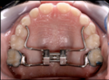 Hyrax rapid palatal expander.png