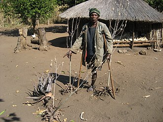 Mozambique - A land mine victim in Mozambique