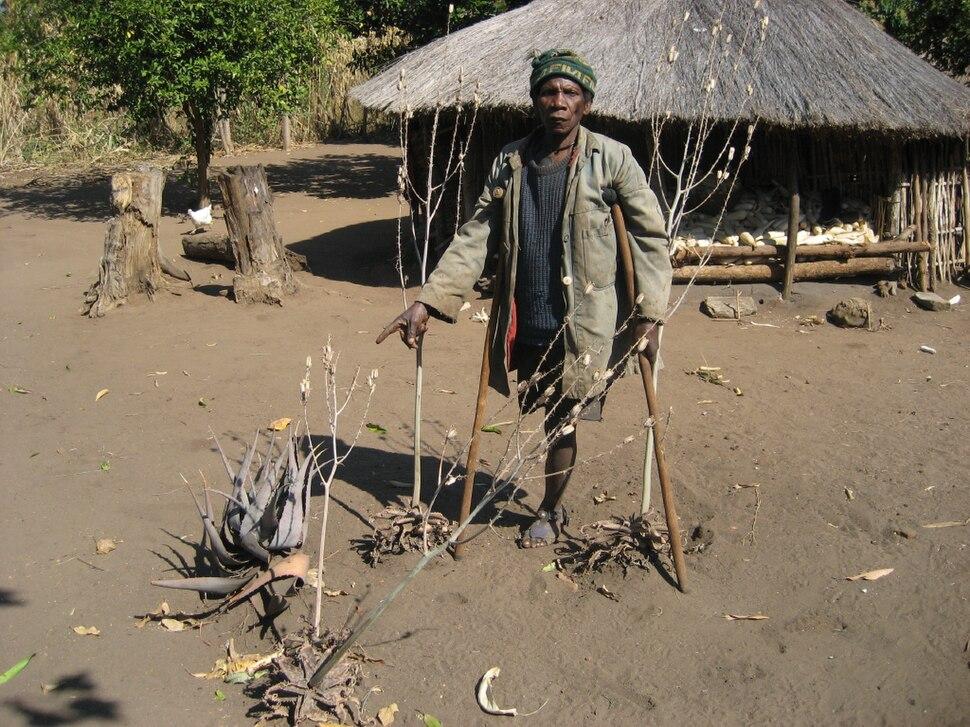 Land mine victim 2 (4364914733)