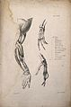 Muscles and bones of the shoulder, arm and hand; an écorché Wellcome V0008183.jpg