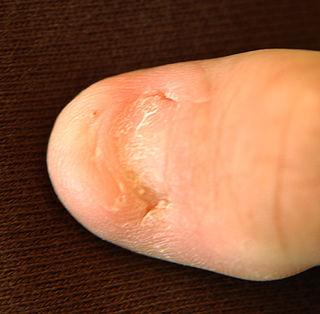 Nail–patella syndrome