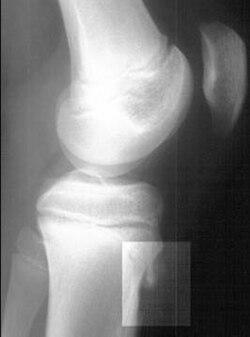 афлутоп при патологии связок суставов