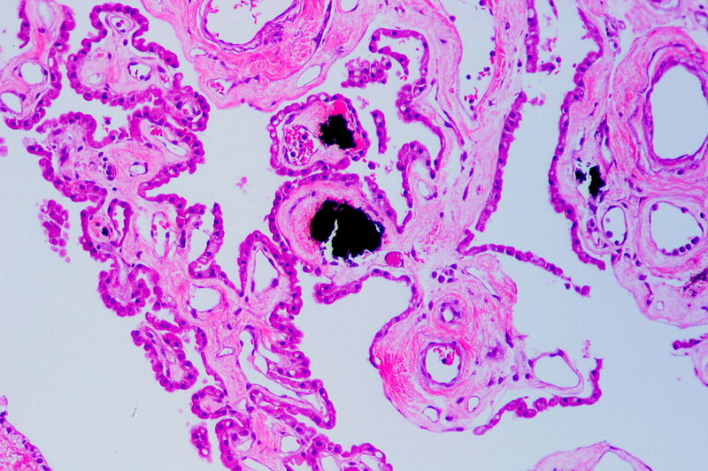 Datei:Psammoma bodies in the choroid plexus, HE.JPG
