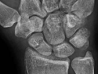 Bone healing - Radiolucency around a 12 day old scaphoid fracture that was initially barely visible.