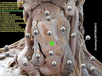 Cricothyroid ligament - Image: Slide 5e