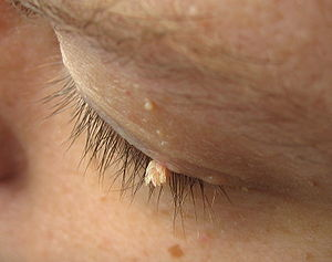 Filiform wart on the eyelid