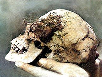 """Who put Bella in the Wych Elm? - The skull of """"Wych Elm Bella,"""" as retrieved 18 April 1943"""