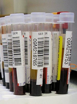Test tube - Samples of human blood collected for blood tests.