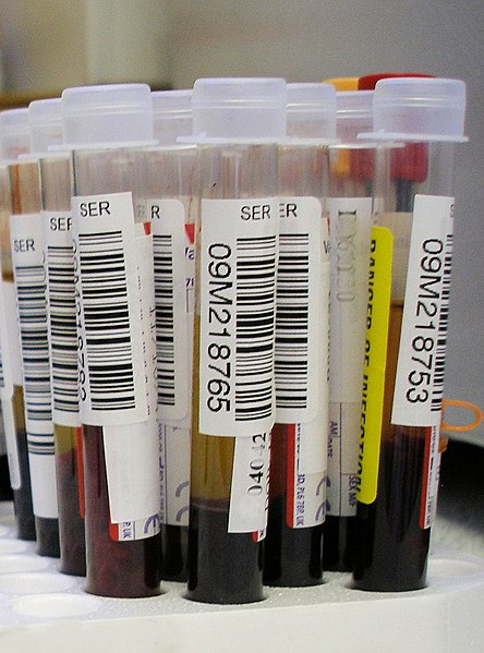 Blood Test Detects Alzheimer's Damage Before Symptoms