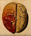 Brain; view from above, showing the gyri, with one hemispher Wellcome V0008419.jpg