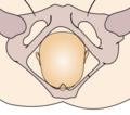 Cephalic presentation - straight occipito-anterior.png