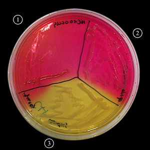 Mannitol salt agar - An MSA plate with Micrococcus sp. (1), Staphylococcus epidermidis (2) and S. aureus colonies (3).